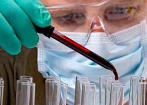Medical Laboratory Technician Career